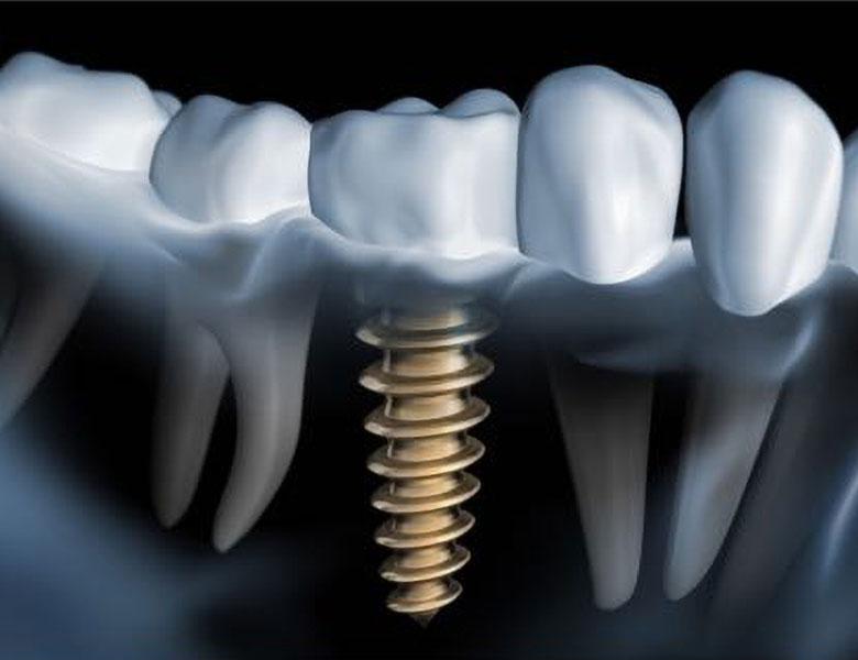 Titelbild Implantologie